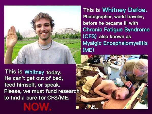 Whitney Dafoe_alvorlig ME_sønn til Ron Davis_US